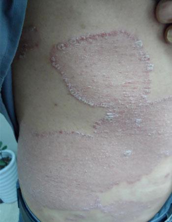 皮损消失算治愈银屑病了吗