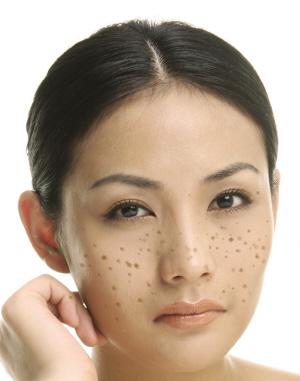 色斑的主要预防措施